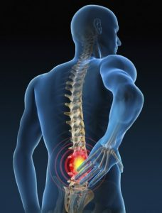 Online Injury Rehab for Low Back Pain